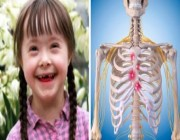 دراسة توضح العلاقة بين متلازمة داون عند الأطفال والإصابة بالتهاب المفاصل